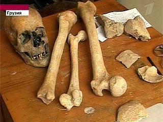http://unexplainedmysteriesoftheworld.com/wp-content/uploads/2010/11/Giant-Skull.jpg