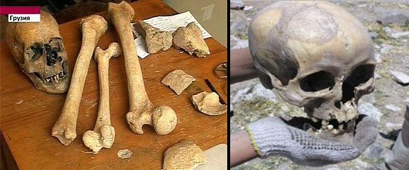 Giant Skeletons Giant Footprints